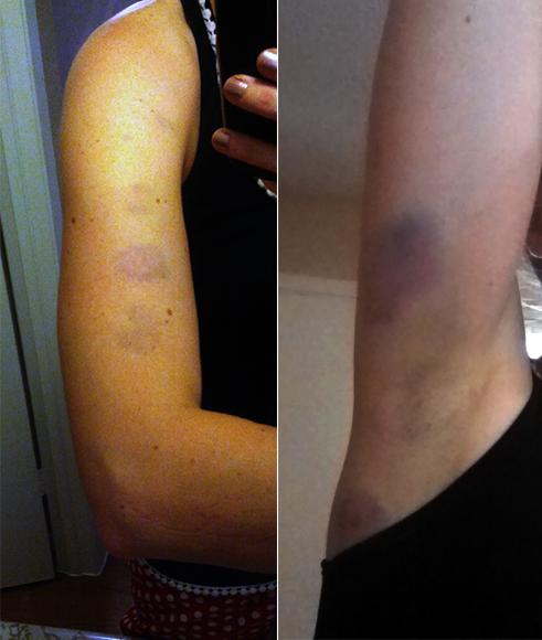 vampire bruises